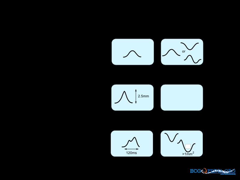 File:P wave morphology.png