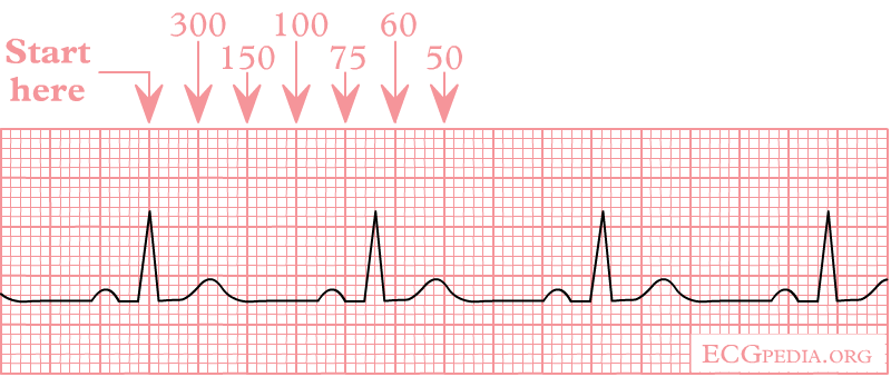 File:Ecgfreq.png