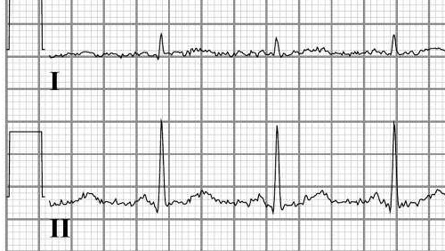 File:Electric noise ecg.png