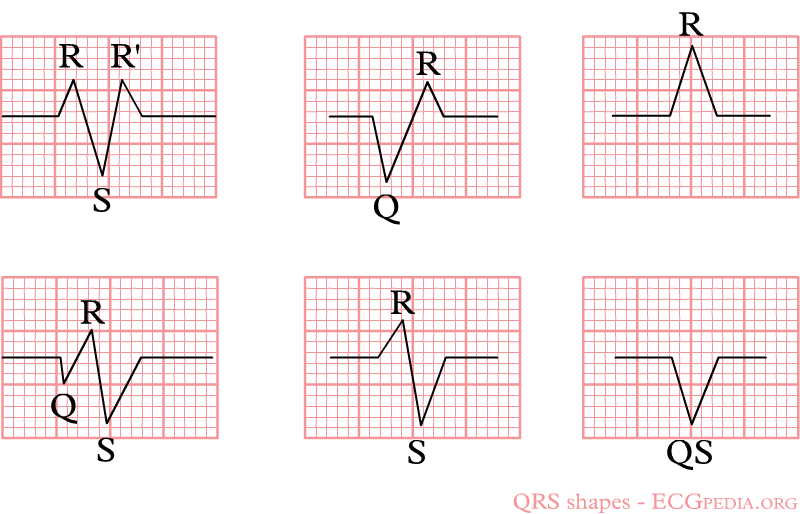File:Qrs-shapes.png