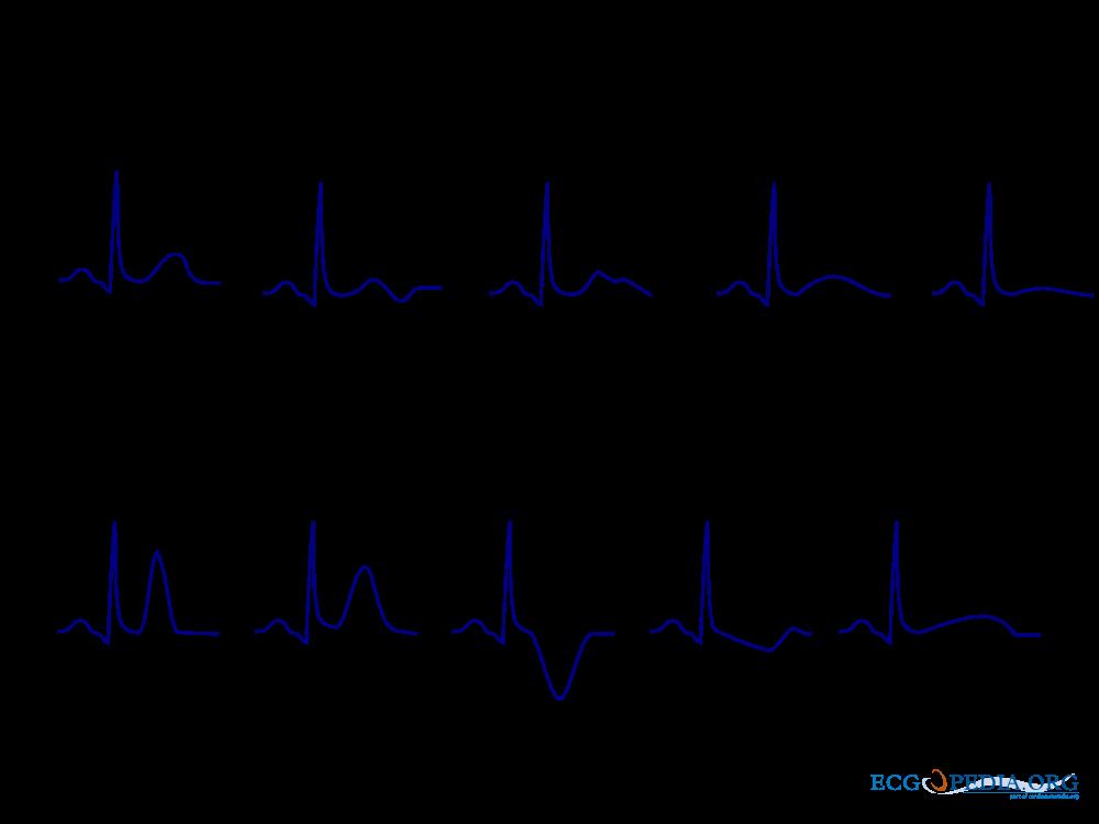 File T Wave Morphology Png Ecgpedia