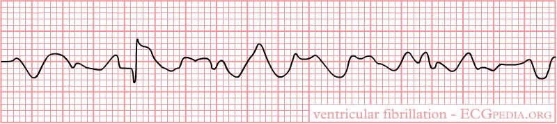 File:Rhythm ventricular fibrillation.png