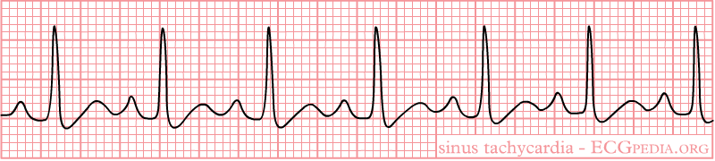 File:Rhythm tachycardia.png