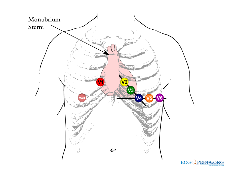 File:Chest leads.png