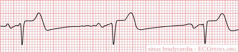 File:Rhythm sinusbradycardia.png