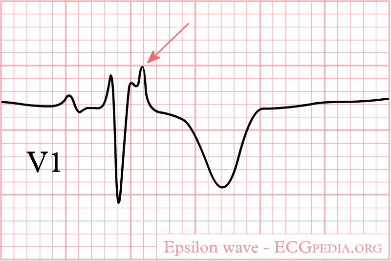 File:Epsilon wave.png