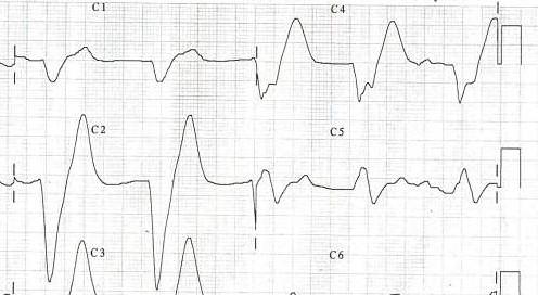 File:Ecg hyperkaliemie.jpg