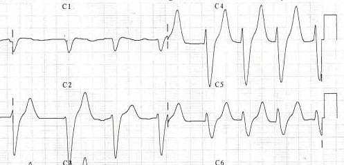 File:Ecg hyperkaliemie2.jpg