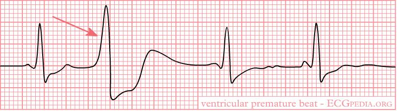 File:Rhythm ventricular premature.png