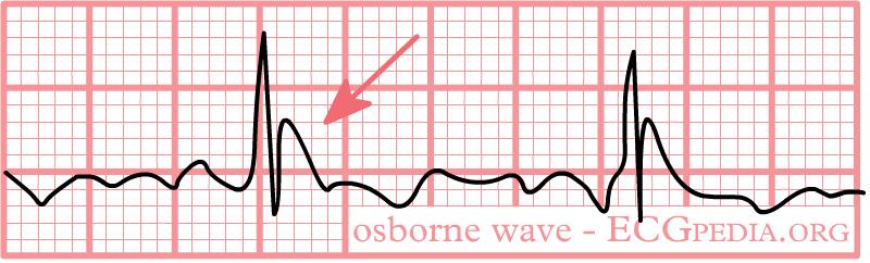 File:Osborne.png