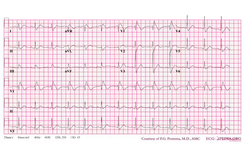 File:Brugada syndrome type1 example5.png