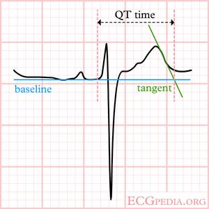 Difficult QT - ECGpedia