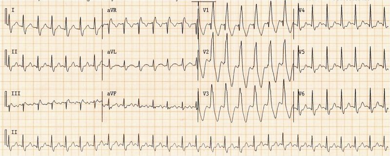 File:Wide qrs tachy AAM1.jpg