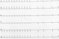 AV Nodal Re-entry Tachycardia (AVNRT) terminated by adenosine injection