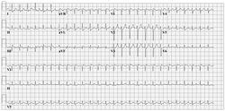 AV Nodal Re-entry Tachycardia (AVNRT)