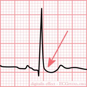 ventrikelfibrilleren