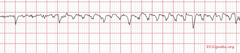 File:ECG Parkinson.png