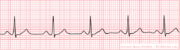 The ECG  Made Easy Tutorial icon