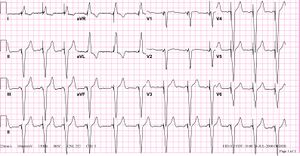 Image Result For V Paced Pacemaker
