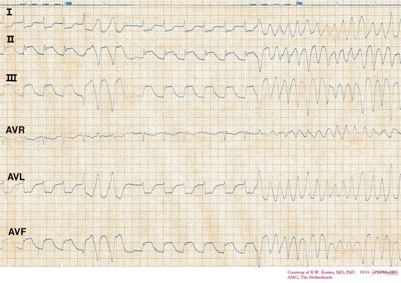 File:ECG SR to VF in INF MI.jpg
