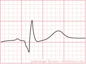 Pathologic Q Waves - ECGpedia
