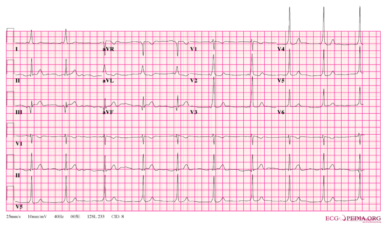 File:Wpw full ecg3.png