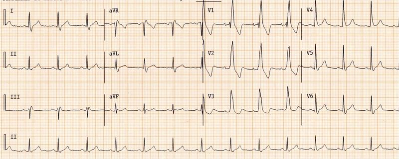 File:Wide qrs tachy AAM2.jpg