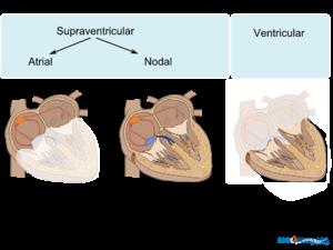 Atrial ventricular.png