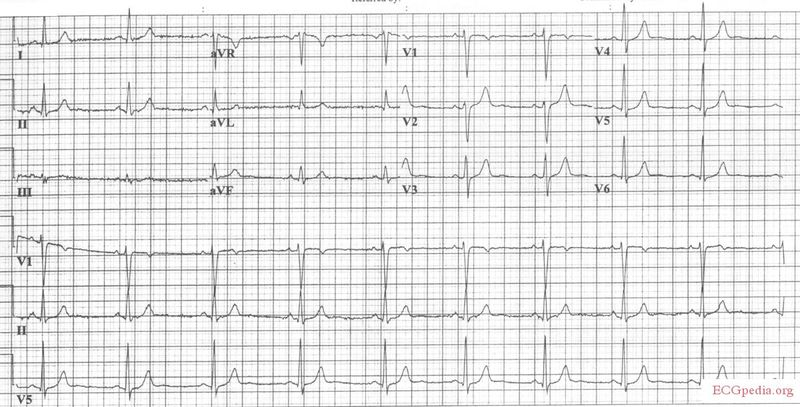 File:ECG amitr OD before.jpg