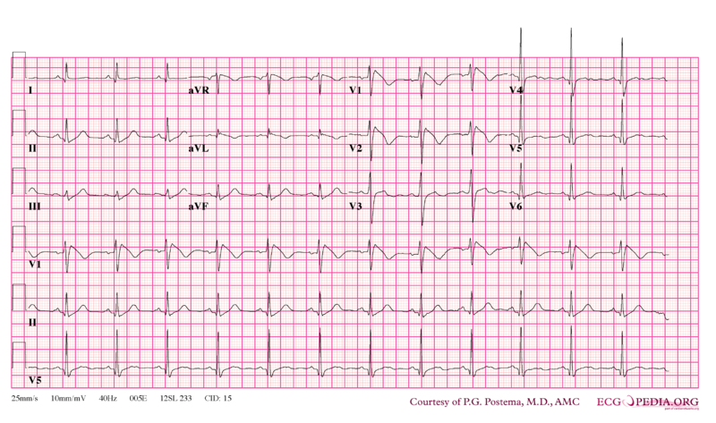 File:Brugada syndrome type1 example4.png