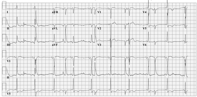 File:Electric noise ecg2.jpg