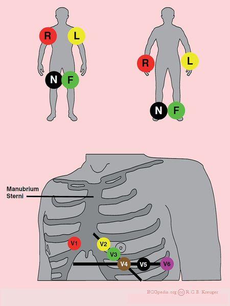 File:ECGelectrodes.jpg