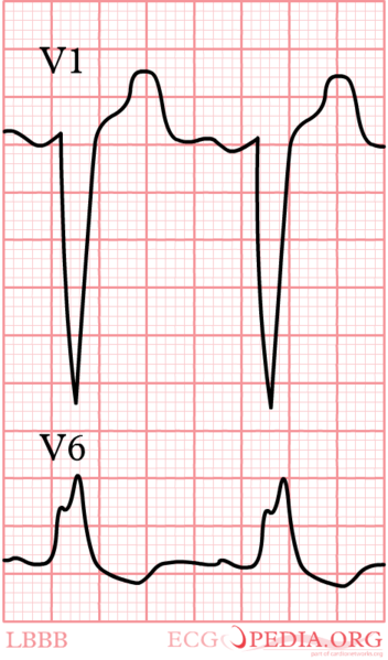 File:LBBB.png