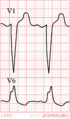 LBBB.png