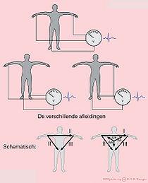 ECGafleidingen.jpg