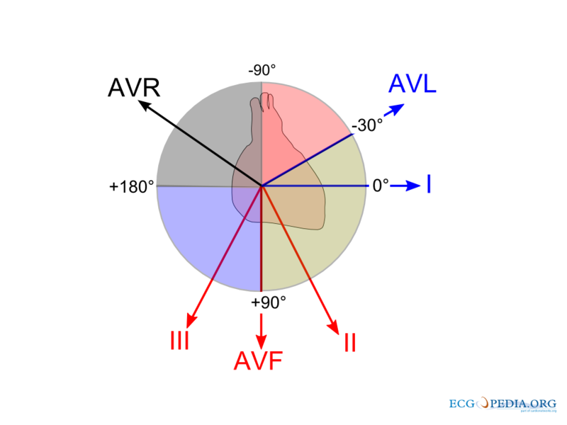 File:ECG lead angulation.png