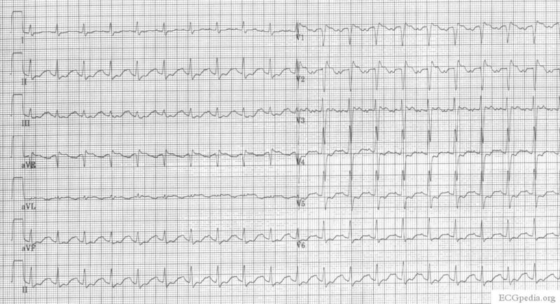 File:ECG amitr OD during.jpg