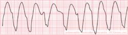 Ventricular Tachycardia (VT or V-tach)