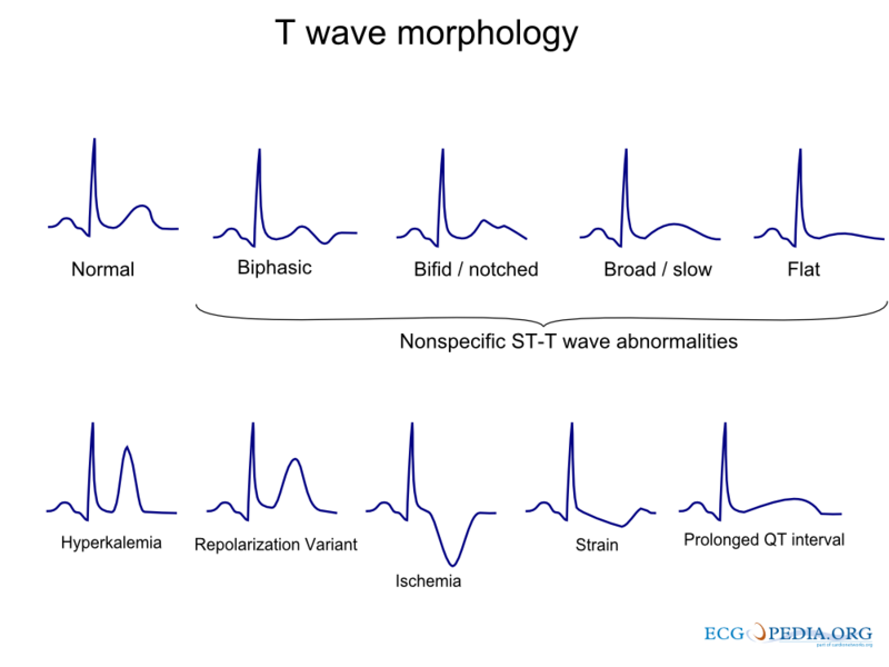 File:T wave morphology.png