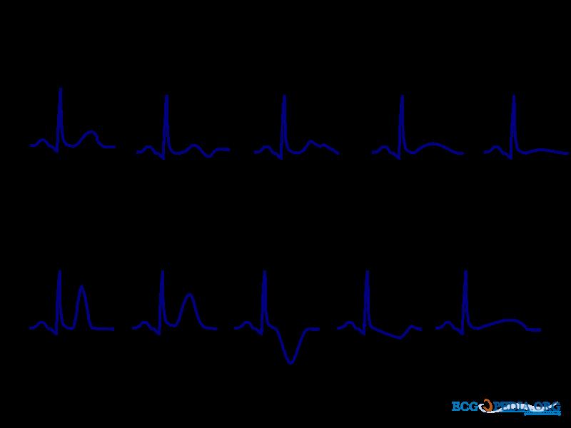 File:T wave morphology.png