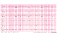 Brugada syndrome type1 example2.png