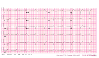 File Brugada Syndrome Type1 Example2 Png Ecgpedia
