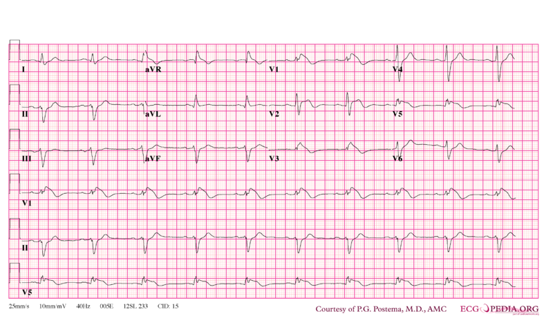 File:Brugada syndrome type1 example2.png