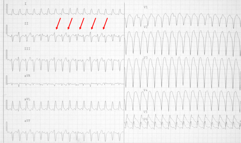File:Wide qrs tachy AAM3.png