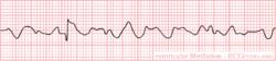 Ventricular Fibrillation (VF or V-fib)