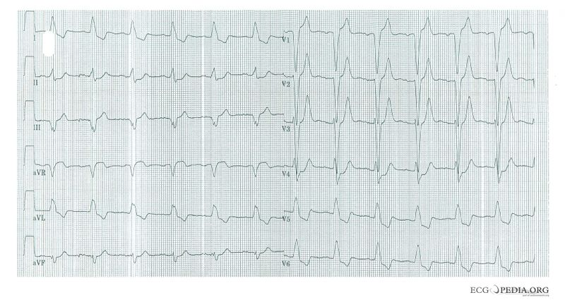 File:LBBB with AMI.jpg