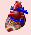 Heart with P infarct.png
