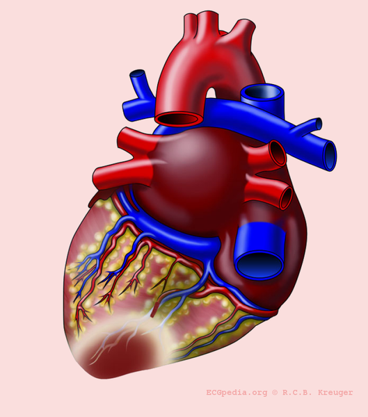 File:Heart with P infarct.png