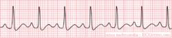 Rhythm tachycardia.png
