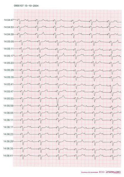 File:Pacemaker retrograde wenkebach.jpg